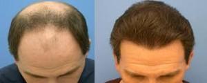 biofibre hair tgransplant