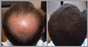 cheap-hair-transplant