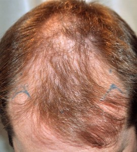 hair-loss-remedies