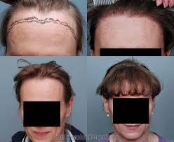 transgender-hair-transplant