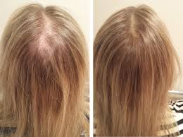 treatment for hair regrowth