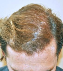 hair-loss-remedies